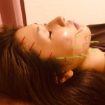 肌質の改善美容鍼SM様