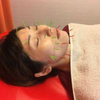 美容鍼顔の引締め効果KS様